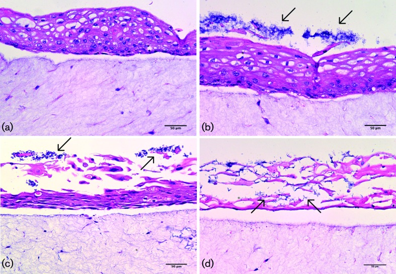 Typical light microscopy images of (a) full-thickness tissue after infection with acrylic coupons only (no biofilm), showing no damage to epithelium; (b) full-thickness tissue after infection with bacteria-only biofilm, showing slight tissue damage and clustering of <t>biofilms</t> on the epithelial surface (indicated by arrows); (c) full-thickness tissue after infection with Candida albicans -only biofilm, showing substantial epithelial damage and biofilms clustered on the surface of the epithelium (indicated by arrows); (d) full-thickness tissue after infection with mixed-species biofilm, showing extensive epithelial damage and microbial invasion through the epithelium (indicated by arrows). Stained with haematoxylin and eosin. The scale bar represents 50 µm.
