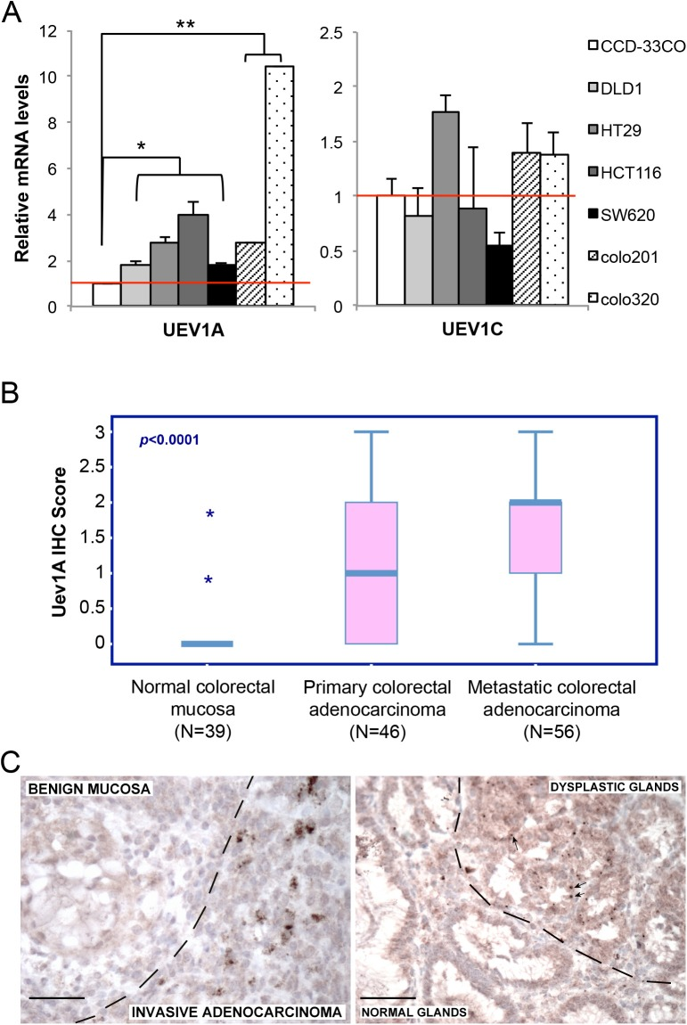 UEV1A is overexpressed in human colon cancer cell lines and tumor samples (A) Relative transcript levels of UEV1A and UEV1C variants in human colon cancer cell lines as determined by qRT-PCR.( * P