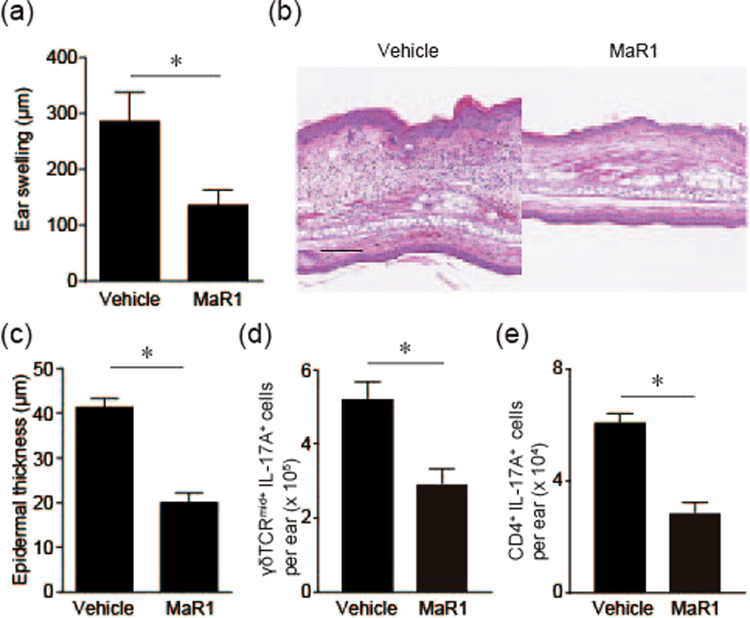 MaR1 inhibits <t>IL-23</t> injection-induced psoriatic skin inflammation. ( a ) Ear swelling response. Ears swelling was measured from Day 0–16 upon topical application of vehicle or MaR1 (100 ng) 30 min before intradermal injection of 500 ng recombinant mouse IL-23 (n = 3) every other day. The mean ear thickness in both ears was calculated in 3 mice. ( b ) Hematoxylin and eosin-stained sections. Ear skin was collected on day 16. Bar, 200 μm. ( c ) Histological examination of epidermal thickness (n = 3). ( d ) The number of γδTCR mid+ and intracellular IL-17A + cells in the skin (n = 4). Ear skin was collected 24 h after IL-23 injection for two consecutive days and subjected to flow cytometry. ( e ) The number of CD4 + and intracellular IL-17A + cells in the skin (n = 4). Results are expressed as the mean ± SEM. All p -values were obtained by Student's t test: * P
