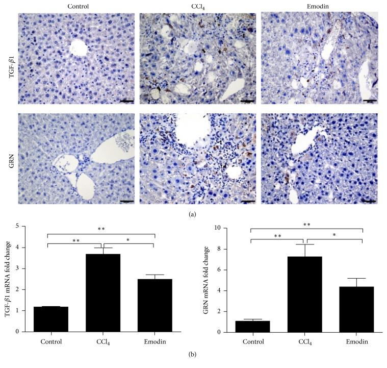 Emodin inhibited the Gr1 hi monocyte associated profibrogenic cytokines . (a) Immunohistochemical staining of GRN and TGF- β 1 in the liver tissues. (b) Hepatic mRNA expression of GRN and TGF- β 1 in the liver tissues. All data are expressed as the mean ± SEM. ∗∗ P