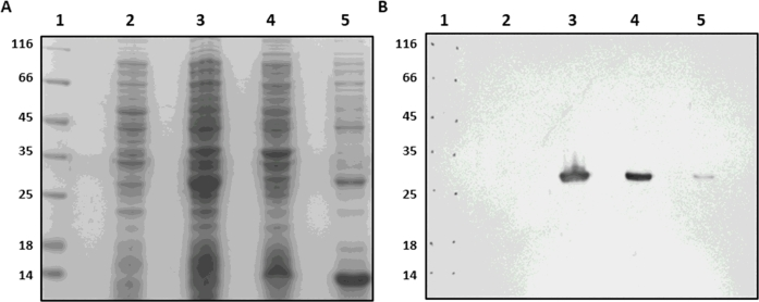 Expression of recombinant His-GlNMNAT . (A) SDS-PAGE, Coomassie blue staining. (B) Immunoblotting on nitrocellulose membrane. (1) Molecular weight marker (MWM). (2) Uninduced BL21 cells. (3) Total cells induced. (4) Insoluble fraction. (5) Soluble fraction.