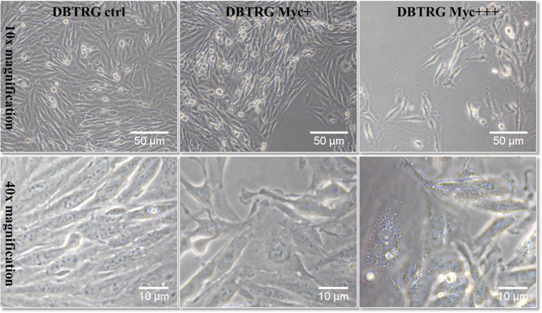 DBTRG cells; control versus contaminated cells after 24 h mycoplasma infection in <t>T25</t> culture flasks (supernatant Myc+ corresponds to dilution 1:100 supernatant Myc+++) shown using an inverted microscope