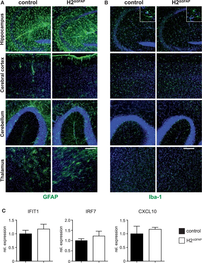 Absence of neuroinflammation in RNase H2 Δ GFAP mice. (A) Immunohistochemistry for the astrocyte marker GFAP reveals absence of significant astrogliosis in the hippocampus, cerebral cortex, cerebellum, and thalamus of RNase H2 ΔGFAP mice. Astrogliosis would present as increased expression of GFAP, cellular hypertrophy with changes of astrocyte morphology or proliferation of astrocytes. (B) Comparable Iba-1 staining between RNase H2 ΔGFAP and control brains indicates absence of microgliosis in RNase H2 ΔGFAP mice (age 3 months). Inserts represent magnifications of individual hippocampal microglia showing similar morphology in both genotypes. Scale bar = 150 µm. (C) Comparable mRNA expression of IFIT1, IRF7, and CXCL10 in RNase H2 ΔGFAP and control brains ( x = 1), as quantified by <t>qPCR.</t> ISG expression was normalized to GAPDH. Whole brain <t>RNA</t> was prepared from P3-4 pups. Error bars are SEM, t -test ( n = 5 brains/genotype).