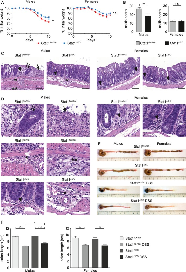 Epithelial STAT1 is a sex‐specific promoter of acute colitis. (A) Weight loss of DSS‐treated male (nine STAT1 flox/flox , nine STAT1 ∆IEC ) and female (eight STAT1 flox/flox , nine STAT1 ∆IEC ) mice. (B) Colitis score of DSS‐treated male (18 STAT1 flox/flox , 18 STAT1 ∆IEC ) and female (10 STAT1 flox/flox , 15 STAT1 ∆IEC ) mice. (C,D) H E‐stained images for evaluation of colitis in DSS‐treated male and female STAT1 flox/flox and STAT1 ∆IEC mice. Scale bar indicates 100 μm (C) or 20 μm (D). Arrow: complete erosion of epithelial surface; arrowhead: immune infiltration into the mucosa; double arrow: epithelial regenerative atypia simulating dysplasia; ӿ: immune infiltration into the submucosa; ӿӿ: immune infiltration into the subserosa. (E,F) Colon shortening in DSS‐treated male (nine STAT1 flox/flox , 12 STAT1 ∆IEC ) and female (eight STAT1 flox/flox , seven STAT1 ∆IEC ) mice (≥ 5 control mice per sex and genotype). Bars represent data ± SEM. ns: not significant.