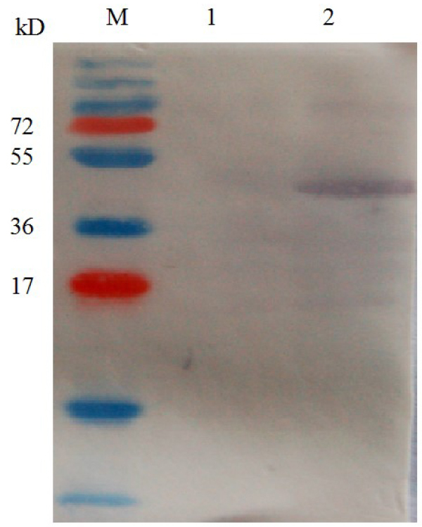 Western blot analysis of recombinant <t>VCAM-1-GST</t> protein. M – prestained protein marker; 2 – anti-GST antibody as the first antibody