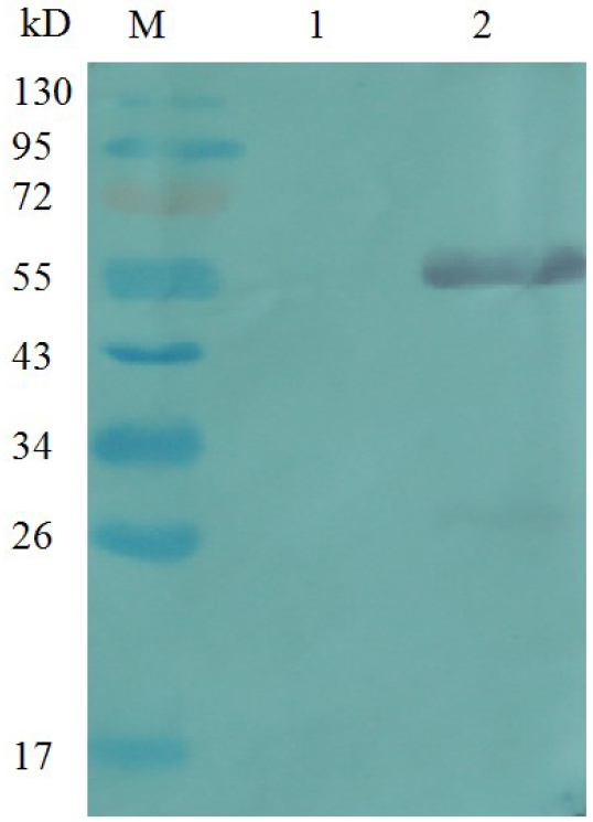 Western blot analysis of VCAM-1-His Polyclonal antibody to identify recombinant VCAM-1-GST protein. M – prestained protein marker; 1 – GST; 2 – VCAM-1-GST