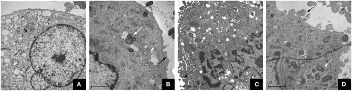 Transmission electron microscope observation of macrophages stimulated by P. gingivalis W83, ΔPG0352 and comΔPG0352 respectively (15,000 ×, bar: 2 μm). (A) control group; (B) P. gingivalis W83 group; (C) ΔPG0352 group; (D) comΔPG0352 group. White arrow: P. gingivalis internalized by macrophage; black arrow: P. gingivalis adhering to macrophage surface.