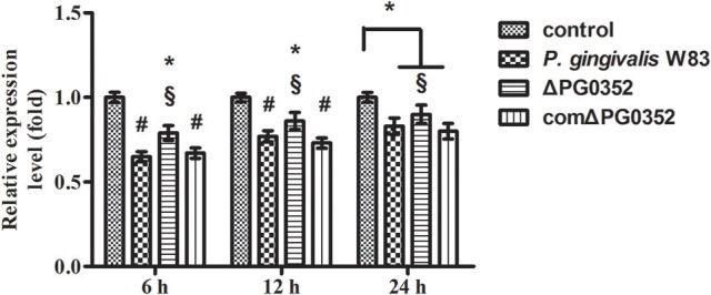 The expression of lncRNA GAS5 in macrophages stimulated by P. gingivalis W83, ΔPG0352 or comΔPG0352 after CR3 suppressed by CD11b antibody. * P