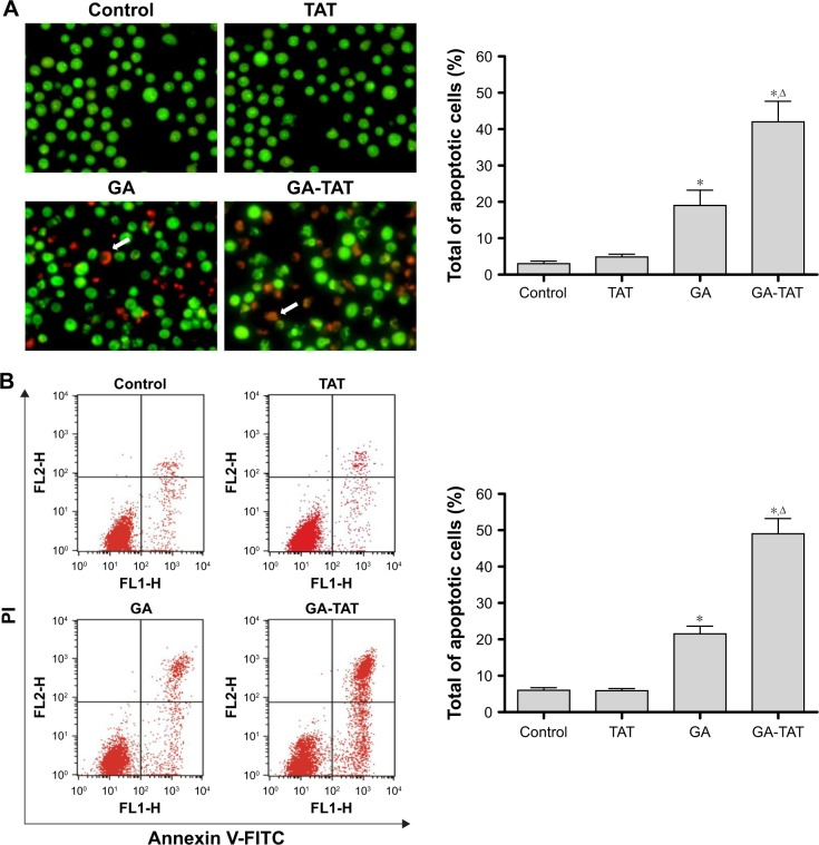 GA-TAT induces apoptosis in EJ cells. ( A ) EJ cells were exposed to 1.0 μM TAT, GA, or GA-TAT for 24 h and then collected and mixed with 200 μL of dye mixture containing 100 μg/mL AO and EB. Cellular morphological changes were observed by using fluorescence microscopy (200× magnification). ( B ) After exposure to 1.0 μM TAT, GA, or GA-TAT for 24 h, EJ cells were harvested and stained with Annexin <t>V-FITC</t> and PI, followed by flow cytometric analysis of apoptosis. Arrows indicate apoptotic cells. * P