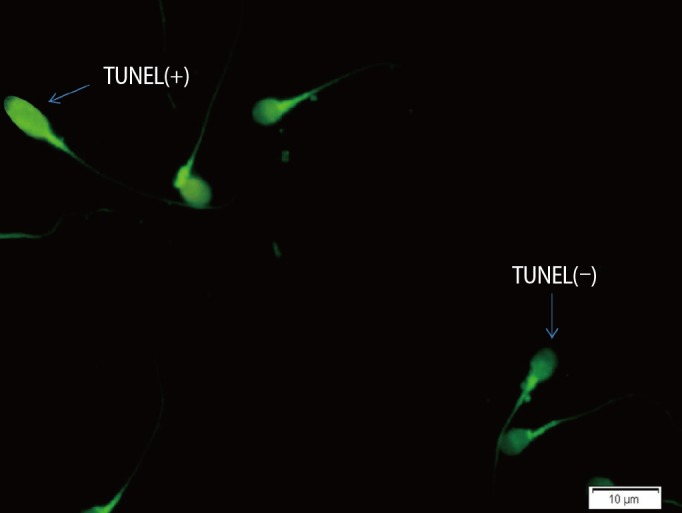 TUNEL assay for the detection of sperm DNA fragmentation. Under fluorescent microscopy, normal DNA is seen as light green (TUNEL−) and damaged DNA is seen as bright green (TUNEL+) (×100 eyepiece magnification). TUNEL, terminal deoxynucleotidyl transferase dUTP nick end labeling.