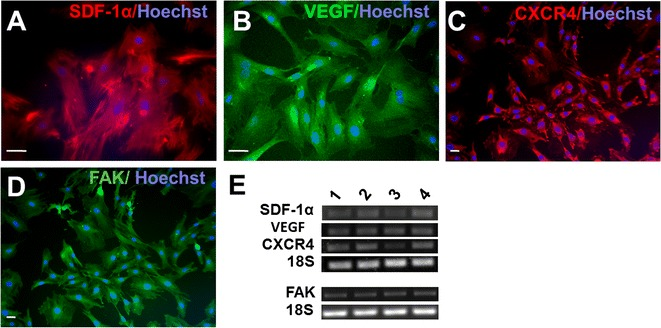 Regenerative factors expressed in BMSCs. Immunocytochemistry was performed in cultured BSMCs for the expression of several regenerative factors. A – D Expressions of SDF-1α, VEGF, CXCR4, and FAK were detected in BMSCs. Scale bars represents 20 μm. E Reverse transcription PCR analysis confirms the expression of SDF-1α, VEGF, CXCR4, and FAK in four different batch of BMSCs