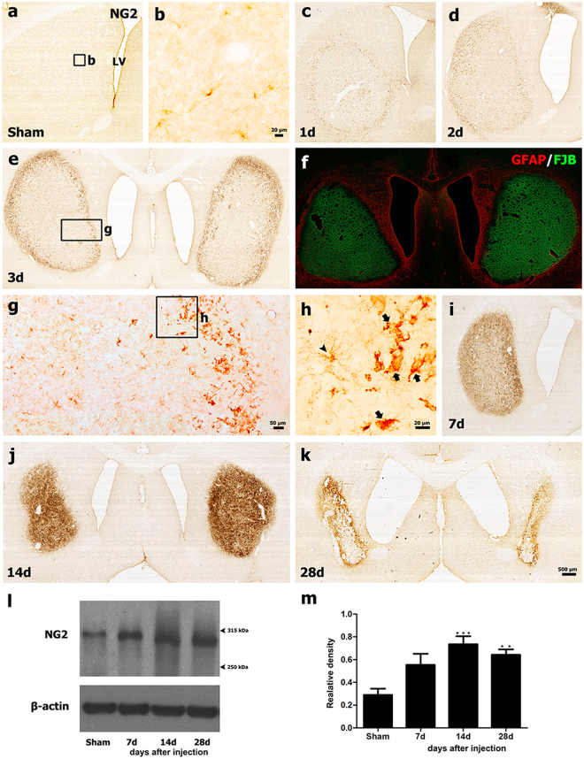 Representative images showing the temporal profiles of NG2-positive cells in 3-NP-treated rat forebrains. ( a ) Low-magnification view of a coronal section from a saline-treated control. ( b ) Higher-magnification view of the boxed area shown in a. Note that weak NG2 expression was observed in small stellate cells with fine processes in control striatum. ( c – e ) Prominent NG2 immunoreactivity appeared at the lesion edge by day 1 ( c ), and appeared to move into the epicenter on days 2 ( d ) and 3 ( e ) post-lesion. The boxed areas in e and g are enlarged in g and h, respectively. Note that NG2-positive cells in the lesion periphery had irregular cell bodies with thick and short processes (arrows in h), while small stellate cells with long fine processes (arrowhead in h) were preferentially found in the epicenter. ( f ) Merged image of FJB staining and GFAP immunoreactivity using serial striatal sections obtained 3 days post-lesion. Note that the lesion core is distinguished by intense FJB staining and concomitant loss of GFAP-positive astrocytes. ( i – k ) Changes in NG2 immunoreactivity in striatal sections from 3-NP-treated rats 7 ( i ), 14 ( j ), and 28 days (k) post-lesion. Prominent NG2 immunoreactivity was localized within both the lesion edge and the epicenter. LV: lateral ventricle. ( l ) Representative western blot analysis results for NG2 protein expression in striatal extracts from sham controls and rats killed 7, 14, and 28 days post-lesion. Note that a band of about 300 kDa corresponding to NG2 protein was clearly observed in both the control and lesioned striatum. ( m ) Quantification of NG2 protein expression. Data were obtained using densitometry and were normalized using β-actin as the loading control. The results are expressed in relative optical density and represent means ± SEM. The intensity of NG2 protein reactivity significantly increased by 14 days after 3-NP injection and then decreased, although enhanced expression levels persisted until at least day 28. **P