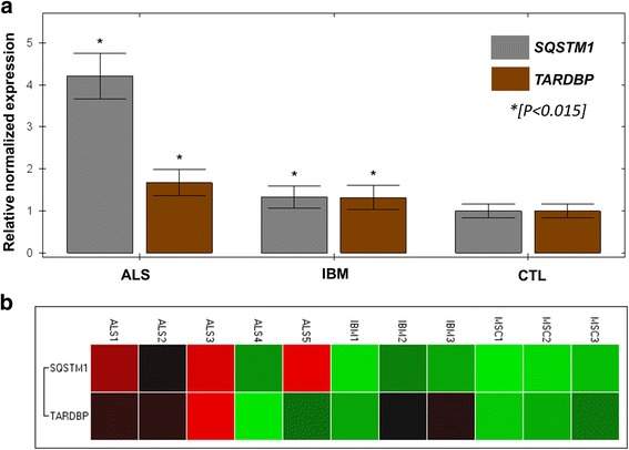 "qPCR analysis was performed in 5 ALS muscle samples (""ALS1–5"") and 3 IBM muscle samples (""IBM1–3""), all containing p62 and pTDP-43 inclusions by immunohistochemical studies (see Results ). Three non-ALS, non-IBM samples with mild neurogenic atrophy in the muscle biopsy were also studied (""MSC1–3""). SQSTM1 and TARDBP were analyzed relative to the expression of two housekeeping genes ( 18 s , GAPDH ) and data shown are combined from two 96-well plates (4 replicates per sample and primer). There was a significant increase in relative normalized gene expression for both ALS and IBM samples ( a ), relative to controls (right) and this was most significant for SQSTM1 expression in ALS samples ( > 4-fold expression relative to controls, P"