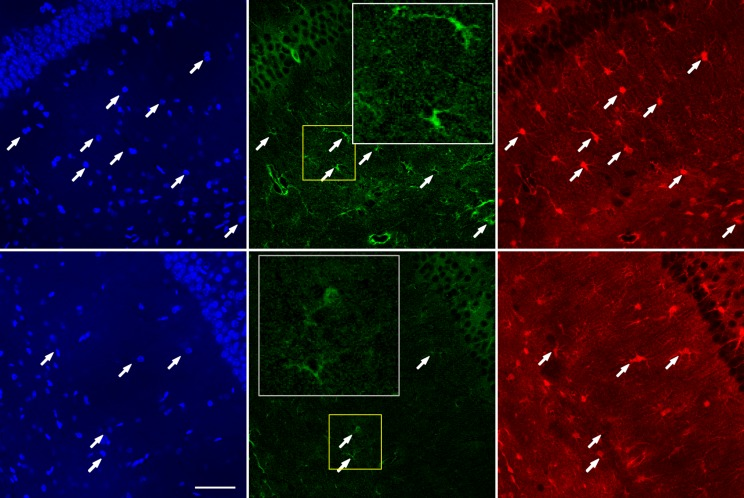 Co-staining of TRPC4 and astrocyte marker S100β on hippocampal sections from wild type (WT) and Mecp2 knockout ( Mecp2 -/y ) mice. ( A ) Strong TRPC4 immunoreactivity from Mecp2 -/y (top) but not WT (bottom) mice. Arrows indicate TRPC4 fluorescence co-localized with S100β positive cells. White inserts provide zoomed-in views of the yellow boxed regions. Scale bar = 50 μm. ( B ) Quantification of relative TRPC4 immunoreactivity in S100β positive cells in the hippocampus of WT and Mecp2 -/y mice (WT = 1). ***p