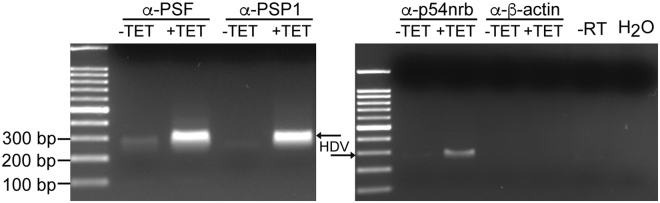 Association of HDV RNA with PSF, p54nrb and PSP1 in HEK-293 cells. HDV replication in 293-HDV cells was induced (+) or not (−) by tetracycline, then the cells were treated with formaldehyde to cross-link the RNA-protein complexes and lyzed. The lysates were used for RIP using α-PSF, α-p54nrb and α-PSP1 antibodies. The α-β-actin antibody was used for RIP as a negative control. Following co-immunoprecipitation, the cross-links were reversed by heating the samples and RT-PCR was carried out to amplify a 300 bp fragment of the HDV RNA genome located on the terminal domain containing the ribozyme sequences. The resulting PCR product was resolved on an agarose gel. The 100 bp DNA Ladder (NEB) was used as marker.