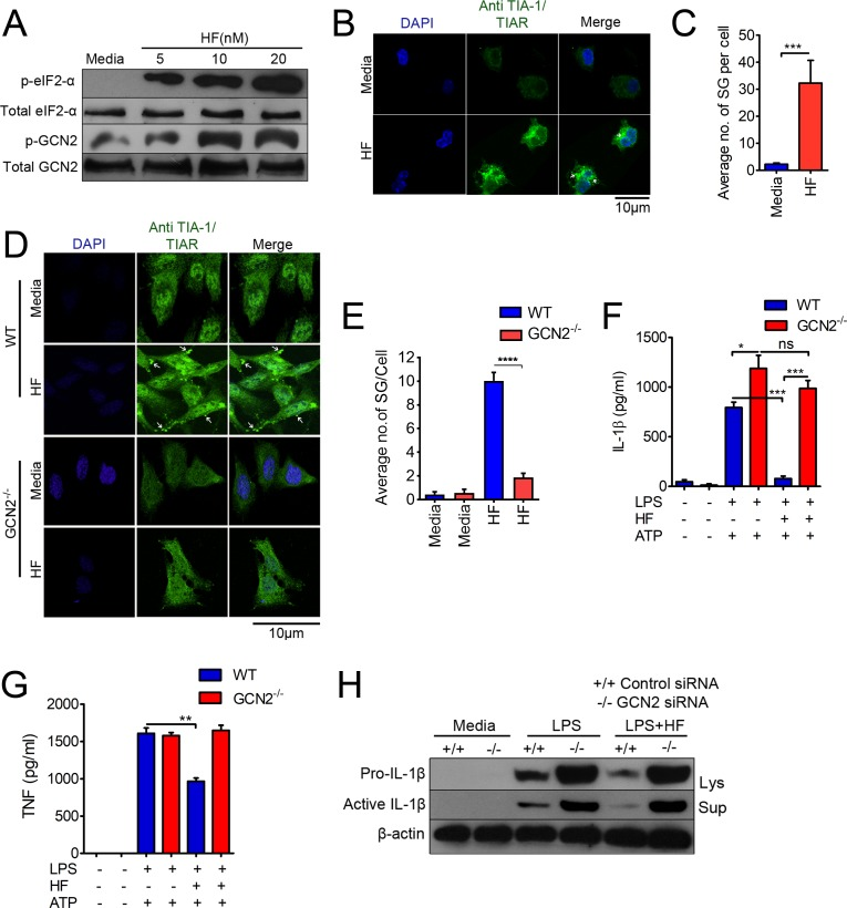 HF attenuates LPS-induced IL-1β production through GCN2-dependent activation of PTR events such as riboclustering and SG formation. (A) Immunoblot analysis of GCN2 and eIF2-α phosphorylation in the lysates of macrophages treated or untreated with varying concentrations of HF for 3 h. (B) Confocal microscopy imaging of SGs, indicated by white arrows in macrophages stimulated with HF (20 nM) for 3 h; nuclei were stained with DAPI (blue). Scale bars, 10 μm. (C) Quantification of average number of SGs per cell, from 5 different fields taken from the results in panel B ( S1 Data ). (D) Confocal microscopy imaging of SGs in WT (top) or GCN2 −/− MEFs (bottom). (E) Quantification of an average number of SGs per cell in WT or GCN2 −/− cells treated with HF ( S1 Data ). (F, G) IL-1β (panel F) or TNF-α (panel G) levels by ELISA in the culture supernatants of WT or GCN2 −/− BMDMs primed with LPS for 3 h followed by HF treatment. ATP (5 mM) was added to the cultures for 30 min at the end of the experiment ( S1 Data ). * P