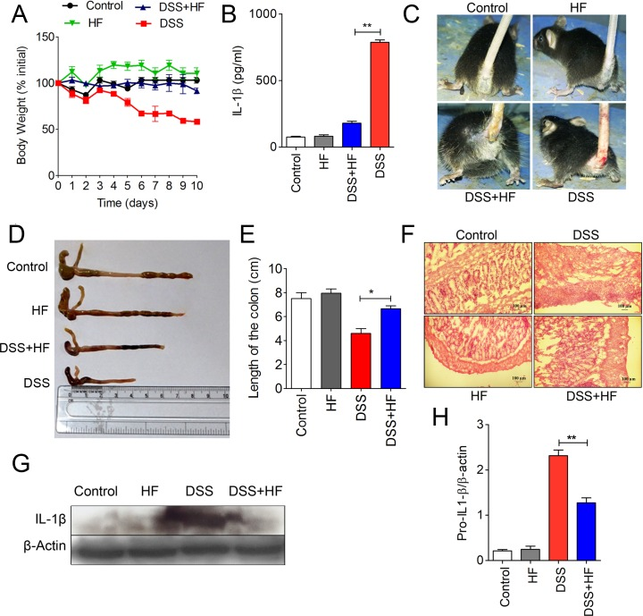 HF mitigates the severity of DSS-induced colitis in mice. (A) Body weight (percentage of initial body weight) of mice ( n = 5) ( S1 Data ). (B) Quantification of IL-1β levels by ELISA in serum samples of the indicated mice ( S1 Data ). ** P ≤ 0.0015. (C) Visualization of rectal bleeding. (D) Visualization of typical colon length in control, HF-, DSS-, and DSS plus HF–treated mice. (E) Measurement of colon length (cm) ( S1 Data ). (F) Visualization of mucosal epithelium erosion and crypt loss in colon sections (HE-stained) as indicated. (G) Immunoblot analysis of IL-1β levels in the large intestine tissue samples. (H) Densitometric analysis of pro–IL-1β levels from colon tissues of mice subjected to treatments as indicated ( n = 4) ( S1 Data ). β-actin was used as loading control. Data are representative of 1 of 3 separate experiments. DSS, dextran sulfate sodium; HE, hematoxylin–eosin; HF, Halofuginone; IL-1β, interleukin 1β.