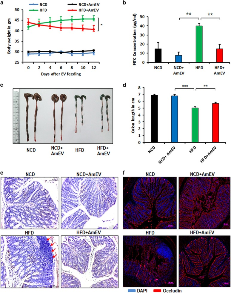 A. muciniphila -derived EVs improve gut permeability in high-fat diet (HFD)-fed mice. Mice were fed a normal chow diet (NCD) or a HFD for 12 weeks, followed by oral administration of AmEVs (10 μg per mouse) every other day for 2 weeks. ( a ) Body weight changes were measured at the indicated time points. The graph shows body weight change from the day that EV feeding started. ( b ) In vivo intestinal permeability assay in NCD, NCD+AmEV, HFD and HFD+AmEV mice conducted after 4 h of treatment with FITC-dextran. The serum FITC concentration was measured using blood collected by retro-orbital bleeding, and fluorescence was measured using a spectrofluorometer. Data are shown as the mean±s.e.m. ( c ) Gross imaging of the colons dissected from NCD-, NCD+AmEV-, HFD- and HFD+AmEV-fed mice. ( d ) The colon length of NCD-, NCD+AmEV-, HFD- and HFD+AmEV-fed mice. ( e ) Hematoxylin and eosin staining of colon sections from NCD-, NCD+AmEV-, HFD- and HFD+AmEV-fed mice. Red arrows indicate the recruitment of immune cells. Scale bar is 50 μm. ( f ) Immunohistochemical images showing occludin expression (occludin—red, nucleus—blue) in NCD-, NCD+AmEV-, HFD- and HFD+AmEV-fed mice. Scale bar is 50 μm. All data are presented as the mean±s.e.m. of 3 experiments; n =5–7 per group; * P