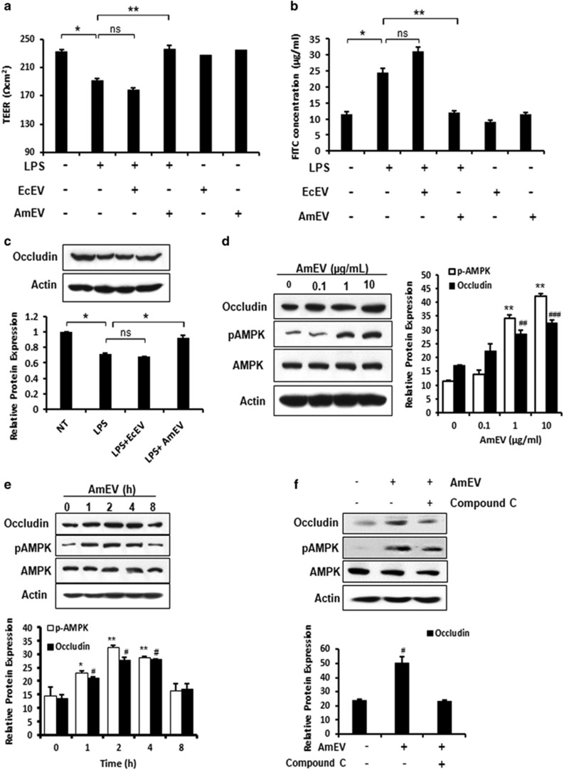 A. muciniphila -derived EVs reduce LPS-induced intestinal permeability through AMPK phosphorylation. ( a ) Trans-epithelial electrical resistance in Caco-2 cells 4 h after treatment with LPS (5 μg ml −1 ), LPS (5 μg ml −1 )+EcEVs (1 μg ml −1 ) and LPS (5 μg ml −1 )+AmEVs (1 μg ml −1 ). ( b ) In vitro permeability assay in Caco-2 cells 4 h after LPS (5 μg ml −1 ), LPS (5 μg ml −1 )+EcEV (1 μg ml −1 ) and LPS (5 μg ml −1 )+AmEV (1 μg ml −1 ) treatment. FITC-dextran was added to the upper chamber in the Caco-2 transwell chamber assay, and the transport of FITC-labeled dextran across the Caco-2 monolayer culture was measured by fluorescence spectrofluorometry. ( c ) Expression of tight junction proteins in Caco-2 cells after LPS, LPS+EcEV and LPS+AmEV treatments. A graph showing the relative occludin expression (normalized to actin) is also shown (* P