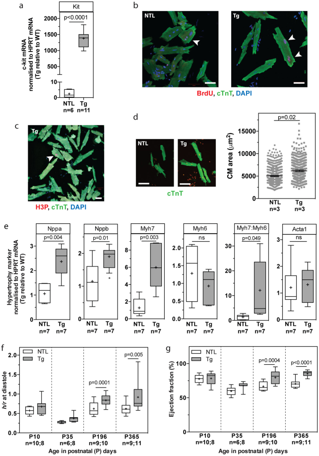 CM-specific overexpression of dn-c-kit resulted in CM hypertrophy, leading to a thicker LV wall, a smaller LV cavity and higher ejection fraction. ( a ) Expression of Kit (c-Kit) mRNA in male P196 dn-c-kit-Tg (Tg; n = 11) and NTL (n = 6) hearts; differences analysed by Student's t -test. (b , c ) Examples (white arrowheads) of <t>BrdU</t> + <t>/cTnT</t> + ( b ) or H3P + /cTnT + ( c ) CMs isolated from P121 Tg ( b , right panel, and c ) or NTL ( b , left panel) hearts after 9 days of BrdU (10 mg/kg/day) infusion by osmotic mini-pump. Scale bar: 50 μm. ( d ) Left panels, representative photographs, and right panel, quantitation of surface area showing hypertrophy of isolated CMs from P121 Tg (682 CMs analysed from n = 3 mice) relative to NTL hearts (1015 CMs analysed from n = 3 mice); differences analysed by Student's t -test. Scale bar: 100 μm. ( e ) Abundance of Myh6 (encoding α-MHC) and Acta1 (α-skeletal actin) mRNAs was similar, while abundance of other mRNAs ( Nppa (ANP), Nppb (BNP), Myh 7 (β-MHC)) and the Myh 7 :Myh6 (β-:α-MHC) ratio were significantly increased in male P196 dn-c-kit-Tg relative to NTL hearts (n = 7); differences analysed by Student's t -test. ( f ) Increased LV wall thickness to chamber radius ( h/r ) ratio at end-diastole in P ≥ 196 dn-c-kit-Tg (n = 10–11) relative to NTL (n = 9) hearts; differences analysed by two-way ANOVA with Tukey's multiple comparison test. ( g ) Increased ejection fraction in P ≥ 196 dn-c-kit-Tg (n = 10–11) relative to NTL (n = 9) hearts; differences analysed by two-way ANOVA with Tukey's multiple comparison test.