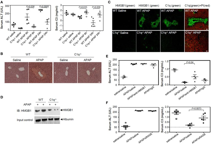 High-mobility group box 1 (HMGB1)-induced complement activation is decreased in C1q-deficient mice of APAP-induced hepatotoxicity model. (A) Overnight fasted wild-type (WT) or C1q −/− mice (9–10 weeks old, male) were intraperitoneally (i.p.) treated with 400 mg/kg of APAP or saline. After 0, 6, and 24 h, mouse serum samples were collected. Serum alanine aminotransferase (ALT) activity (left) and C3 levels (right) were determined using ALT color endpoint assay and enzyme-linked immunosorbent assay, respectively. Each dot represents each mouse with triplicates per sample (four or five mice per group). (B,C) Mice were euthanized 24 h after APAP administration, and the left medial lobe of liver was fixed in 4% paraformaldehyde and 30% sucrose. Liver tissue was stained with hematoxylin and eosin for evaluation of necrosis and hemorrhage (B) . Tissue-Tec OCT-embedded liver was stained with anti-C1q and anti-HMGB1 antibodies (Abs) for immunofluorescence analysis (C) . (D) Serum HMGB1 protein from WT and C1q −/− mice was detected using Western blot analysis 24 h after APAP injection. (E) Anti-HMGB1 (2G7) or mouse IgG (5 μg/mouse) was i.p. administrated immediately after APAP administration to block HMGB1. After 24 h, mouse serum samples were collected and ALT activity (left panel) and concentration of C3 (right panel) were determined. Saline was used as a negative control. (F) HMGB1 was i.p. injected with sRAGE (5 µg/mouse) as described in (E) . N = 4–5 mice/group. Data = mean ± SEM. Student's t -test (unpaired two-tailed) was used to calculate the P -value. All scale bars, 20 µm. Data are representative of three (A–E) or two (F) independent experiments.