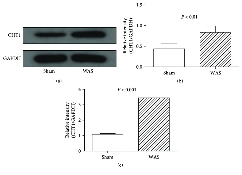 Western blotting and quantitative RT-PCR analysis of <t>CHT1</t> expression in dorsal root ganglion (DRG). (a) Representative Western blotting for CHT1 in colonic DRGs. (b) Levels of CHT1 protein measured by Western blotting analysis. P