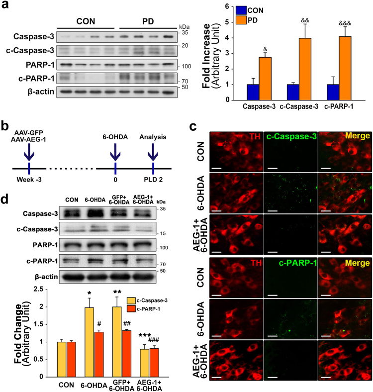 Anti-apoptotic effects of AEG-1 transduction in DA neurons on 6-OHDA neurotoxicity. a Western blot analyses show a significant increase in the levels of caspase-3, c-caspase-3, and c-PARP1 in the postmortem tissues of patients with PD compared with CON. p = 0.014 for caspase-3, p = 0.019 for c-caspase-3, and p = 0.009 for c-PARP-1, vs . CON ( t -test; n = 4 for each group). b Experimental schematic for Fig. 3c, d. c Representative double immunofluorescence labeling for TH (red) and c-caspase-3 (green) or TH and c-PARP-1 (green) in the mouse SN. AEG-1 upregulation induces reductions in the levels of expression of both c-caspase-3 and c-PARP-1 in TH-positive DA neurons in the SN with 6-OHDA neurotoxicity. Scale bar, 20 μm. d Western blot analyses of the levels of c-caspase-3 and c-PARP-1 in the SN 2 days after 6-OHDA treatment. * p = 0.029, ** p = 0.025, # p = 0.032, and ## p = 0.016 vs . CON; *** p = 0.009 and ### p = 0.002 vs . 6-OHDA alone (one-way ANOVA with Tukey's post hoc test; n = 4 for each group)