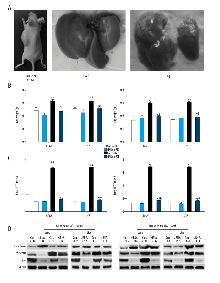 Reducing Ezrin suppressed metastasis of EGF-injected MG63 and U20S xenografts of BALB/c-nu mice. ( A ) BALB/c-mu mouse with osteosarcoma xenografts. ( B ) Liver and lung weights of tumorigenic mice. ( C ) HPRT mRNA level in livers and lungs of tumorigenic mice. ( D ) E-cadherin, vimentin, and p65 protein levels in livers and lungs of tumorigenic mice. (HPRT, hypoxanthine guanine phosphoribosyl transferase; Con.+PBS, tumor xenografts and PBS injection; siRNA+PBS, tumor xenografts with silencing Ezrin and PBS injection; Con.+EGF, tumor xenografts and EGF injection; siRNA+EGF, tumor xenografts with silencing Ezrin and EGF injection; * compared to Con.+PBS, P