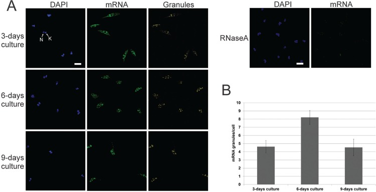: localisation of <t>mRNA.</t> (A) Fluorescent in situ hybridisation assay using specific <t>oligo</t> (dT) probe. As the control, RNase A was incubated with the parasites before probe hybridisation. DAPI: DNA stained with DAPI; mRNA: mRNA detection; granules: labelling of pixels with high intensity fluorescence signals; N: nucleus; K: kinetoplast. Scale bar = 5 µm. (B) Histogram of mRNA granule counts per cell.