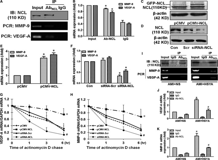 Nucleolin binded to VEGF ‐A and MMP ‐9 mRNA and up‐regulated the expressions of VEGF ‐A and MMP ‐9 mRNA through enhancing their stability. (A) and (B) IP ‐ RT ‐ PCR analysis demonstrated that nucleolin binded to VEGF ‐A and MMP ‐9 mRNA . Nucleolin in the HUVEC s was precipitated by nucleolin antibody and magnetic A/G magnetic beads, Western blotting was performed to identify the precipitation efficiency of nucleolin, and the mRNA expressions of MMP ‐9 and VEGF ‐A were detected in the extracted from the magnetic beads, the representative images (A) and the analysis of results (B) (n = 3 per group; * P