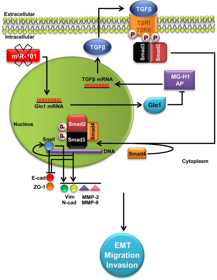 Glyoxalase 1 (Glo1) sustains the metastatic phenotype of prostate cancer cells via epithelial‐to‐mesenchymal transition (EMT) control: involvement of miR‐101, hydroimidazolone (MG‐H1), argpyrimidine (AP) and TGF‐β1/Smads signalling pathway. Glo1 up‐regulation, maintained by the decreased expression (X mark) of the tumour suppressor miR‐101, leads to MG‐H1‐AP depletion. In turn, MG‐H1‐AP depletion contributes to keep activated TGF‐β1/Smads signalling pathway that promotes EMT by inhibiting the epithelial markers E‐cadherin (E‐cad) and zonula occludens‐ (ZO‐1) and activating the mesenchymal markers vimentin (Vim) and N‐cadherin (N‐cad), together with MMP‐2 and MMP‐9, directly via Snail and/or indirectly via other TGF‐β1/Smad‐dependent EMT‐associated transcription factors. Altogether, these events sustain the invasive and migrating metastatic phenotype of prostate cancer cells