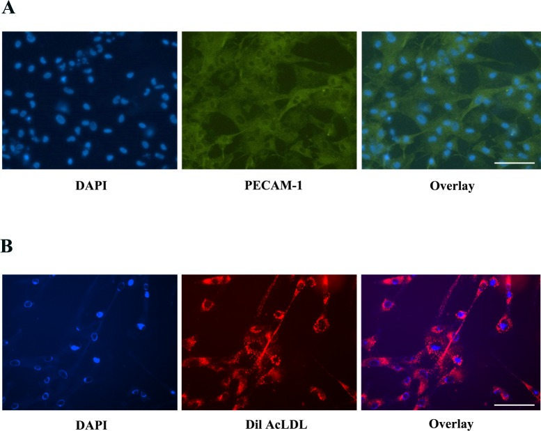 Characterization of isolated HREC. Isolated HREC were characterized by (A) PECAM-1 immunostaining and (B) an assay of DiL-Ac-LDL uptake. The images are representative of three independent experiments. Scale bar: 100 μm.