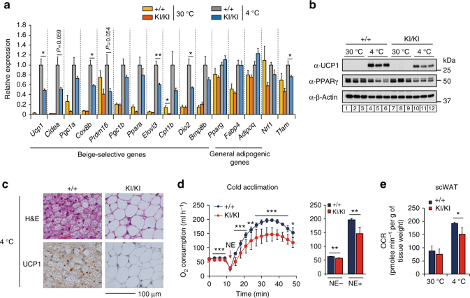 Phospho-S265 JMJD1A induces beige biogenesis. a qPCR analysis demonstrates decreased expression of beige-selective genes in scWAT from Jmjd1a -S265A KI/KI mice exposed to 30 °C or 4 °C for 1 week ( n = 5 per genotype group). b Immunoblot analysis of UCP1 and PPARγ in tissue homogenates of scWAT from mice presented in a . Uncropped images of the blots are shown in Supplementary Fig. 8 . c Haematoxylin and eosin (H E) and UCP1 staining sections of scWAT from WT and Jmjd1a -S265A KI/KI mice exposed to chronic cold exposure (4 °C for 1 week) (scale bar, 100 μm). d NE-induced oxygen consumption rate (OCR) in mice exposed to chronic cold exposure (4 °C for 4 weeks) ( n = 7 per genotype group) (left). OCR before and 30 min after NE treatment are analyzed (right) ( n = 7). e OCR of scWAT from mice exposed to 30 °C or 4 °C for 1 week ( WT : n = 3; Jmjd1a -S265A KI/KI : n = 4). Data are mean ± s.e.m. a , d , e Analysis of variance were performed followed by Tukey's post hoc comparison in a . Student's t test was performed for comparisons in d , e . * P