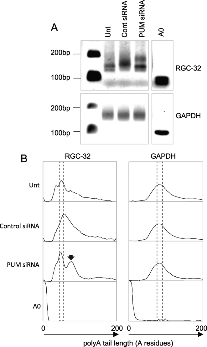 The effects of Pumilio depletion on polyadenylation of the endogenous RGC-32 mRNA. ( A ) ePAT analysis of the length of the endogenous RGC-32 mRNA polyA tail in unstransfected (Unt) GM12878 latency III cells, and in cells transfected with non targeting control siRNA (500 nM) or 200 nM of a 1:1 mix of Pumilio 1 and Pumilio 2 siRNAs. ePAT analysis of the polyA tail of the endogenous GAPDH mRNA was also measured as a control. ( B ) ImageJ quantitation of the agarose gels shown in (A). The areas boxed by dotted lines show the size of the most abundant polyadenylated mRNA species. The arrow shows the RGC-32 mRNA species with a longer polyA tail detected in cells transfected with Pumilio targeting siRNAs.