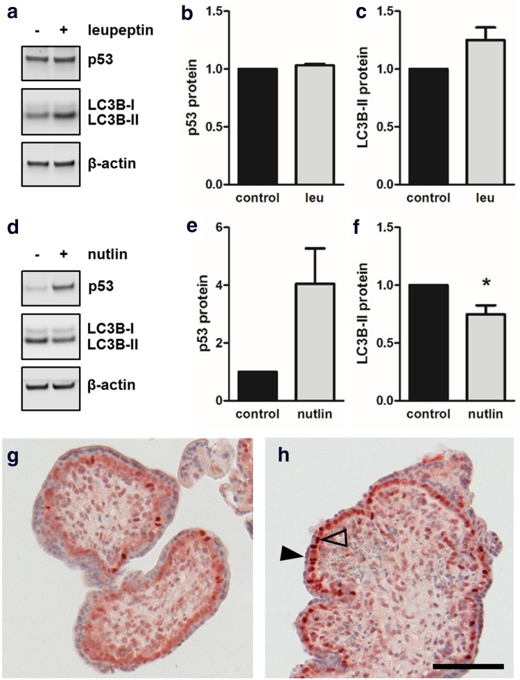 Nutlin-3a increased p53 and reduced LC3B-II levels in placental explants. Incubation of human first trimester placental explants with leupeptin (100 µM) and subsequent immunoblotting ( a ) showed unchanged p53 protein ( b ) and increased LC3B-II levels ( c ) after 48 h incubation, suggesting basal autophagic activity in placental explant culture. Nutlin-3a treatment (10 µM, 48 h) substantially increased placental p53 levels, whereas LC3B-II levels at the same time declined when compared to solvent control ( d , e , f ). Immunohistochemistry of control ( g ) and Nutlin-3a treated placental explants ( h ) revealed increased p53 staining intensity of villous cytotrophoblast nuclei (open arrowhead), while nuclei of the syncytiotrophoblast (arrowhead) remained unstained in response to Nutlin-3a. Scale bar in h represents 100 µm. Data in b and c are presented as mean ± SEM from three and those in e and f from four different patients. * p ≤ 0.05