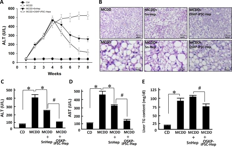 Transplantation of OSKP-iPSC-Heps alleviated steatohepatitis in 18-month-old male MCD diet-fed mouse ( A ) Time course of the changes in serum <t>ALT</t> levels among control diet-fed mice, MCDD-fed mice, and MCDD-fed mice with intrasplenic transplantation of OSKP-iPSC-Heps or SnHeps. ( B ) H E staining showing the fat accumulation and severe hepatocyte vacuolization over the liver from MCDD-fed mice. Effect of intrasplenic transplantation of OSKP-iPSC-Heps or SnHeps on serum ( C ) ALT and ( D ) <t>AST</t> levels, and ( E ) hepatic triglyceride accumulation in MCDD-fed mice. In Panels C, D and E, * P