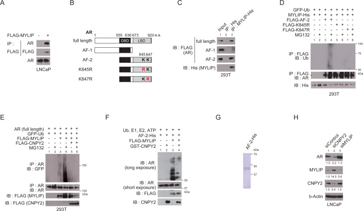 CNPY2 inhibits MYLIP-mediated AR ubiquitination and protein degradation (A) Immunoprecipitation of LNCaP cell extracts with anti-FLAG M2 affinity gel. LNCaP cells were transfected with FLAG-tagged MYLIP expression plasmids for 24 h and used for the immunoprecipitation. AR bound to MYLIP was then detected by immunoblotting. (B) Diagrams representing AR protein structure. K845 (Lys 845) and K847 (Lys847) are the two conserved ubiquitination sites on AR. DBD, DNA binding domain. LBD, Ligand binding domain. (C) Immunoprecipitation of 293T cell extracts with anti-His tag affinity beads. 293T cells were transfected with FLAG-tagged AR (full length, AF-1 or AF-2) expression plasmids and MYLIP-His or His-tag expression plasmids for 24 h and used for the immunoprecipitation. FLAG-ARs bound to MYLIP-His were then detected by immunoblotting with anti-FLAG. (D) MYLIP mediated-ubiquitination of AR was detected by in vivo ubiquitination assay. 293T cells were transfected with FLAG-AR (AF-2, K845R or K847R), MYLIP-His and EGFP-ubiquitin expression plasmids for 24 h and 10 µM MG132 was added to the culture medium 5 h before cell extraction. Cells were lysed and subjected to immunoprecipitation using anti-FLAG M2 affinity gel, followed by immunoblotting with each antibody. (E) In vivo ubiquitination assays were performed using 293T cells transfected with plasmids as indicated. Immunoprecipitation of AR (full length) was done using anti-AR (N-20). (F) In vitro ubiquitination assays were performed using recombinant AR (AF-2)-His, recombinant GST-CNPY2 and immunoprecipitated with FLAG-MYLIP. Reactions were performed with recombinant E1 enzyme, E2 enzyme and ubiquitin at 37° C for 2 h. Ubiquitination of AR was detected by immunoblotting with anti-AR (C-19). (G) Coomassie Brilliant Blue staining with recombinant AR (AF-2)-His protein. (H) Immunoblots using CNPY2 or MYLIP-knockdown LNCaP cell lysates with anti-AR, anti-MYLIP, or anti-CNPY2 antibodies. Band intensity was quantified by Adob