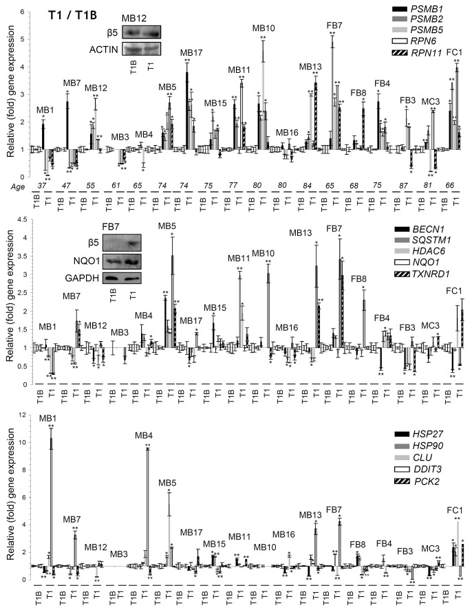 Differential genomic responses in PBMCs twenty four hrs post-treatment (T1) of MM patients with BTZ or CFZ Relative expression levels of the PSMB1 , PSMB2 , PSMB5 , RPN6 , RPN11 (proteasome), BECN1 , SQSTM1 , HDAC6 (autophagic/aggresomes removal), NQO1 , TXNRD1 (antioxidant), HSP27 , HSP90 , CLU (chaperone), DDIT3 (UPR ER ) and PCK2 (metabolic) genes in PBMCs isolated from MM patients 24 hrs post-treatment with therapeutic doses of BTZ or CFZ (T1; see Supplementary Figure 2 ). Inserts show immunoblotting analyses of PBMCs samples isolated from indicated MM patients at T1; protein samples were probed with antibodies against proteasomal β5 or NQO1. Normalization of gene expression was vs . basal gene expression values (set to 1) found in samples isolated before treatment initiation (T1B). ACTIN or GAPDH probing and GAPDH gene expression were used as reference for total protein and total RNA input, respectively. MB: Male BTZ; FB: Female BTZ; MC: Male CFZ; FC: Female CFZ. Bars, ± SD. * P