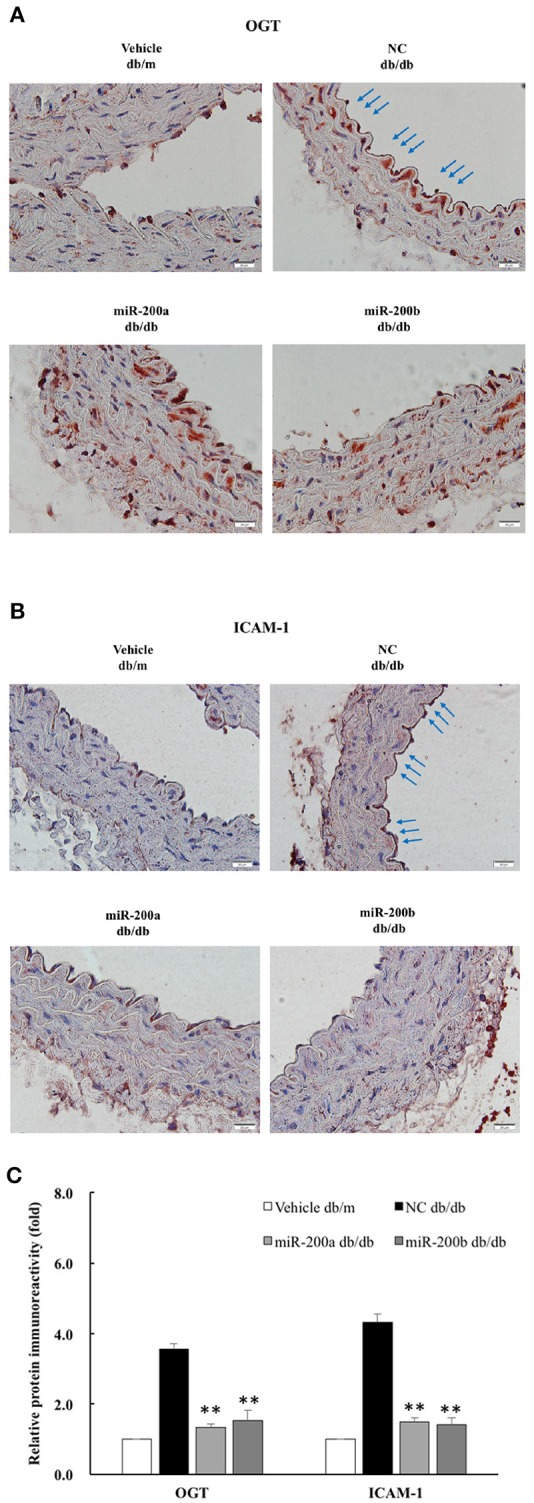 miR-200a/200b mimic decreased endothelial OGT and ICAM-1 expression in type 2 db/db diabetic mice. Immunohistochemistry staining of (A) OGT and (B) ICAMI-1 in the thoracic aorta tissue. Representative images showing that the immunoreactivities of endothelial OGT and ICAM-1 in the aortic endothelial layers (blue color as arrow) were decreased in the miR-200a/200b mimic-treated db/db mice, as compared with the negative control (NC)-treated db/db mice. db/m mice: non-diabetic control mice. N = 3 per group. Scale bar = 20 μm. (C) Immunoreactivity signals in endothelial layers from four treatment groups were quantified for all immunohistochemistry images. ** p