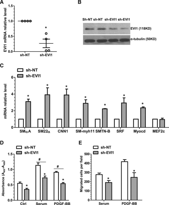 EVI1 inhibition reproduces the effects of miR-22 overexpression on VSMC-specific gene expression, proliferation, and migration. A and B , EVI1 knockdown VSMC was generated and validated. Total RNA and protein of control (nontarget shRNA, sh-NT) and EVI1 stable knockdown (EVI1 shRNA, sh-EVI1) VSMCs were harvested and subjected to RT-qPCR ( A ) and Western blot ( B ) analyses, respectively. C , EVI1 knockdown significantly increases expression of VSMC markers (SMαA, SM22α, CNN1, SM-myh11, SMTN-B) and transcription factors (SRF and Myocd), although the transcription factor MEF2c exhibited no significant change in expression. Total RNA of control and EVI1 stable knockdown VSMCs were harvested and subjected to RT-qPCR. D , Inhibition of endogenous EVI1 decreases VSMC proliferation. Control and EVI1 stable knockdown VSMCs were subjected to serum starvation for 48 hours, followed by BrdU incorporation assays in response to no (Ctrl), serum (20%), and PDGF-BB (10 ng/mL) stimulation. E , Inhibition of endogenous EVI1 decreases VSMC migration. Control and EVI1 stable knockdown VSMCs were subjected to serum starvation for 48 hours, followed by transwell migration in response to serum (20%) and PDGF-BB (30 ng/mL) stimulation. Note: No or very few migrated cells were observed without cell chemoattractant in transwell migration assays; therefore, no control treatment is shown. Data and error bars are representative ( B ) or mean±SEM ( A and C through E ) (n=3 in C ; 4 in D ; or 5 in E ). * P