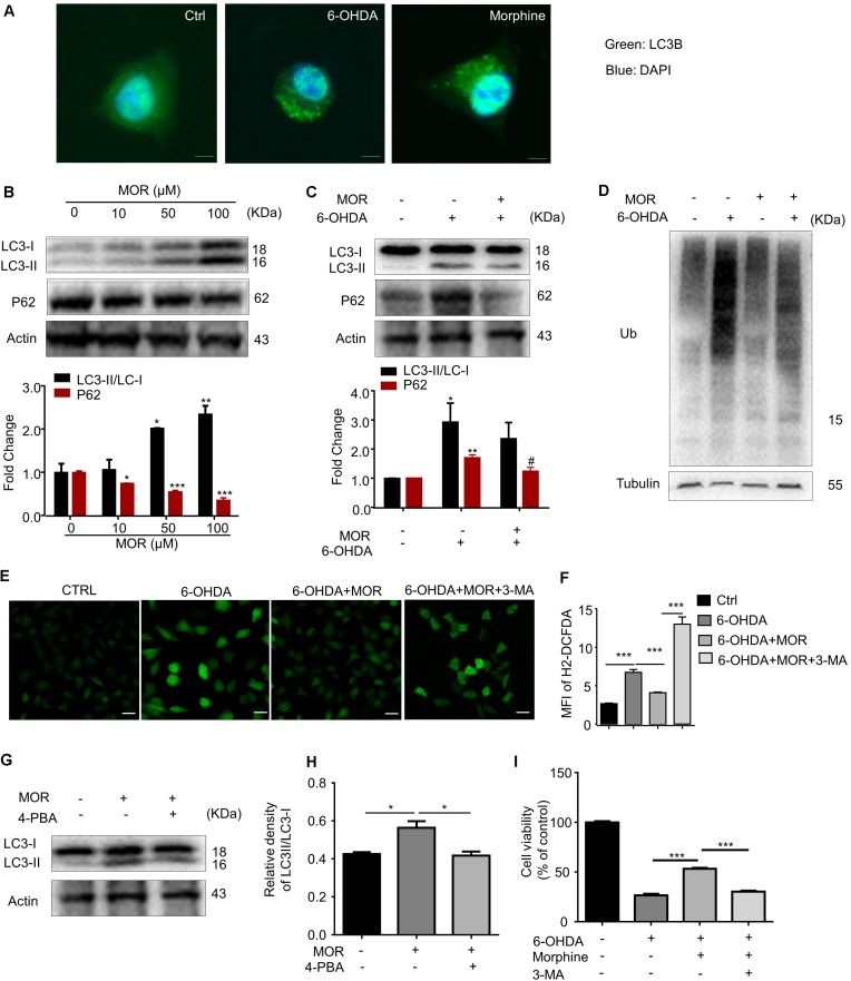 The role of autophagy in morphine-induced neuroprotection in SH-SY5Y cells. (A) Double immunofluorescent staining revealed accumulation of LC3 punctuated foci in cells exposed to 6-OHDA or morphine. Scale bars: 10 μm. (B) Protein levels of LC3, p62 and Actin in SH-SY5Y cells treated with morphine alone for 24 h were analyzed (upper panel) and quantified (lower panel) by western blot. ∗ P