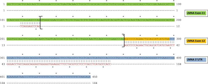 Alignment of progerin PCR product cDNA confirms alternative splicing in the heart. The sequence of purified progerin PCR cDNA (red letters) was aligned to the genomic sequence of LMNA exon 11 (green) to exon 12 (yellow) with the 3´UTR sequence (blue) showing the expected gap of 150bp between exon 11 to exon 12 confirming alternative splicing of progerin.