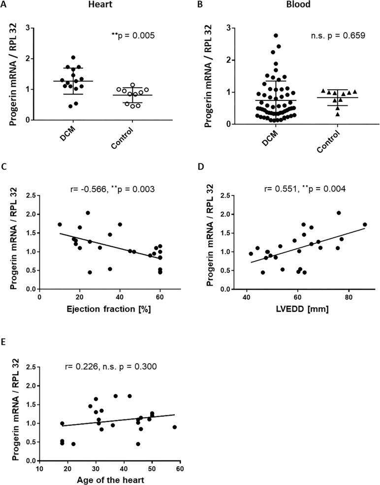 Progerin mRNA is upregulated in DCM hearts and is significantly correlated with measures of heart failure but not with age. A Relative amount of progerin mRNA levels related to the reference gene RPL32 in heart biopsies of patients with DCM (n = 15) and non-failing control hearts (n = 10). Shown are all individual data points, lines show mean ± SD. ** P ≤ 0.01 DCM vs. Control. B Relative amount of progerin mRNA levels related to the reference gene RPL32 in whole blood cells derived from patients with DCM (n = 56) and healthy controls (n = 10). Shown are all individual data points, lines show mean ± SD. P-value was derived from unpaired two-sided T-Test between the groups. C Scatter plot showing the negative correlation between the relative amount of progerin mRNA related to RPL32 with ejection fraction in human heart biopsies (n = 25). ** P ≤ 0.01. D Scatter plot showing the positive correlation between the relative amount of progerin mRNA related to RPL32 with left ventricular enddiastolic diameter (LVEDD) and E Scatter plot showing the positive correlation between progerin mRNA related to RPL32 with the age of the hearts in human heart biopsies (n = 25). N.s. not significant. ** P ≤ 0.01.