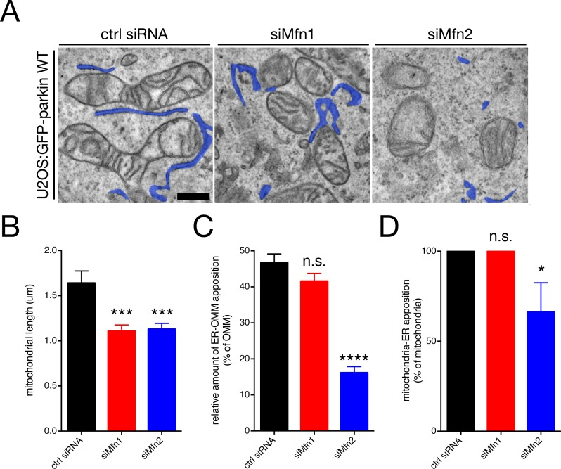 Mfn2 is a mitochondrion-ER tether. ( A ) Representative TEM images of U2OS:GFP-parkin cells transfected with the indicated siRNA. ER tubules are pseudocoloured blue. Scale bar, 500 nm. ( B–D ) Quantification of mitochondrial length ( B ), relative percentage of OMM in contact with the ER ( C ) and percentage of mitochondria in contact with ER per field of view ( D ) in cells from ( A ). Bars represent mean ± SEM, n = 66 to 70 mitochondria in 5 to 7 fields per condition. n.s., not significant; *, p