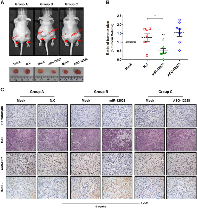 The capacity of hsa-miR-12528 during tumourigenesis in an in vivo model. Influence of miR-12528 during tumourigenesis in vivo. A549 cells were subcutaneously injected in equal amounts into both flanks in an individual mouse. After stabilisation for 5 weeks, the left tumours were only injected with PBS, whereas the right tumours were injected with either NC, miR-12528 or ASO-12528 mimics twice weekly. After a total of 4 weeks from the time of mimic injection, 7 mice per group were sacrificed (a total of 21 mice) and the excised tumour mass was imaged and measured ( a ). The rations of tumour volumes indicate that the right tumours injected with NC, miR-12528 or ASO-12528 mimics were normalised to a left tumour (MOCK) within each individual mouse ( b ). The tumour sections were expressed with H E staining, Ki67-IHC and TUNEL assay. The H E staining result shows the histological morphology of tumour tissues. Positive results for Ki67 and TUNEL, markers of proliferation and apoptosis, were indicated by brown nuclear staining ( c )