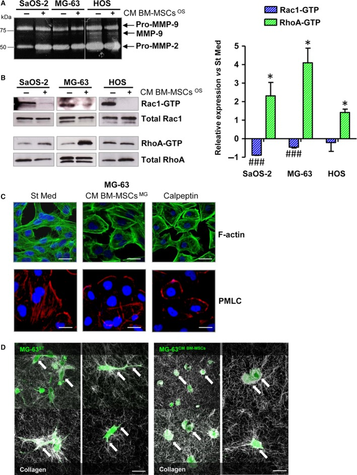 Cross‐talk between BM ‐ MSC s and OS cells promotes the acquisition of an amoeboid‐like motility in cancer cells. (A) Gelatin zymography of CM obtained from Sa OS ‐2, MG ‐63 and HOS cells stimulated or not stimulated for 48 h with CM derived from BM ‐ MSC s activated by each OS cell line ( CM BM ‐ MSC s OS ). The white line indicates the junction of two different gels. Image is representative of three independent experiments. (B) Representative images of pull‐down assay of Rac1 and RhoA GTP ases (left panel) and related quantification (right panel). The assay was performed on OS cells grown for 48 h in CM from tumour‐activated BM ‐ MSC s ( CM BM ‐ MSC s OS ) or in starvation medium. Rac1‐ GTP and RhoA‐ GTP expression was normalized with respect to total Rac1 and RhoA in OS lysates. ### P