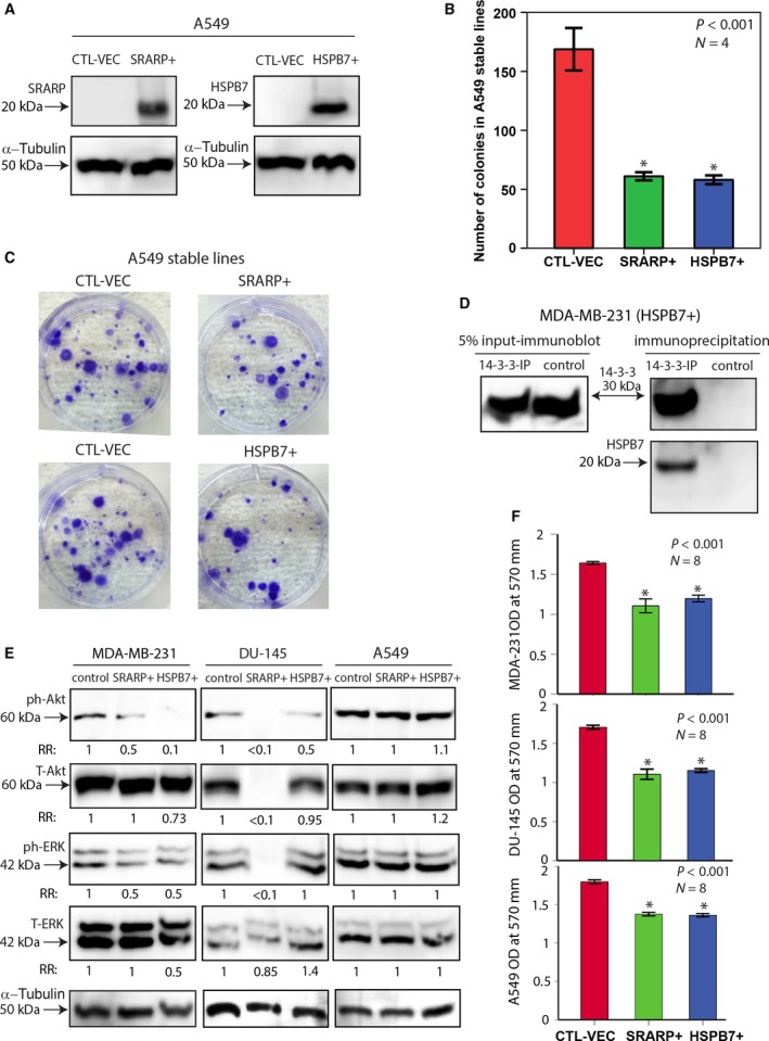 Effects of SRARP and HSPB7 overexpression on colony formation and signaling pathways. (A) Western blotting to assess SRARP and HSPB7 overexpression in A549 cells following transfections. CTL‐VEC: control vector; SRARP+: SRARP overexpression; HSPB7+: HSPB7 overexpression. (B) Clonogenic assays in stably transfected A549 cells containing SRARP (SRARP+), HSPB7 (HSPB7+), or CTL‐VEC. Experiments were carried out in four replicates. ANOVA with Dunnett's post hoc test was applied to calculate the statistical significance. * P