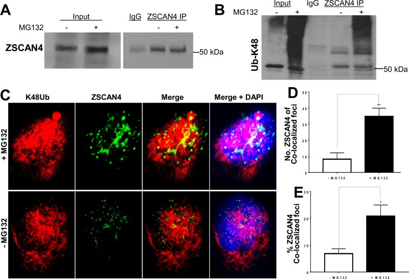 <t>ZSCAN4</t> is Lysine 48 (K48Ub) polyubiquitinated A . Endogenous ZSCAN4 immunoprecipitation (IP) in treated (+MG132) or untreated (−MG132) WT cells followed by ZSCAN4 immunoblot. B . Denaturing conditions where used followed by ZSCAN4-IP and immunoblot with anti-Lysine 48 (K48) ubiquitin (anti-K48Ub). MG132 treated cells indicate that ZSCAN4 is polyubiquitinated. Untreated cells were used as controls. C. Co-immunostaining and confocal microscopy analyses in WT Tu167 cells treated with MG132 (+MG132) or untreated (−MG132) using anti-ZSCAN4 (green) and anti-K48 ubiquitin (red) indicates the ZSCAN4 overlaps with K48Ub. D . Colocalization analyses with ImageJ show an increase in the number of ZSCAN4 foci colocalized with K48Ub and E . the percent (%) of K48Ub colocalized ZSCAN4 foci (n = 6 per group and average of > 300 foci per group). Asterisks indicate * p