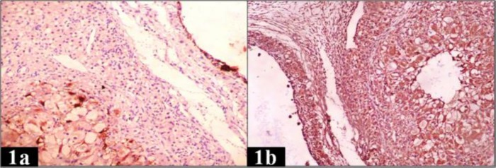 IHC expression of CK AE1/AE3 and vimentin in normal ovary