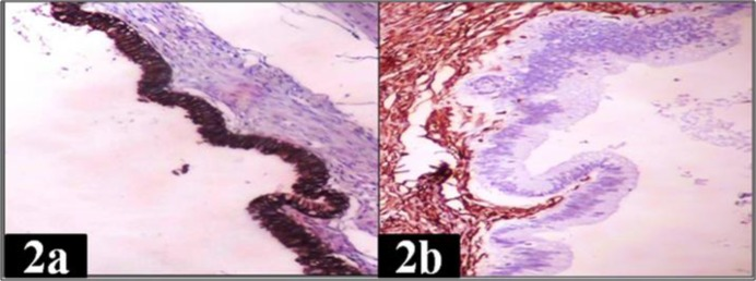 IHC expression of CK AE1/AE3 and vimentin in serous cystadenoma ovary